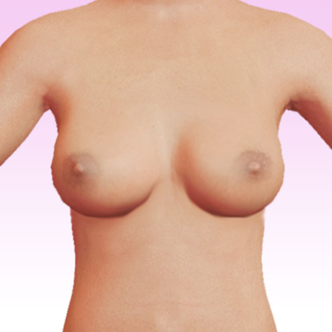 breast frontal