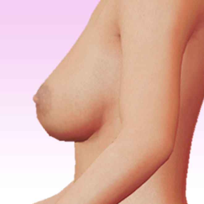 breast left lateral