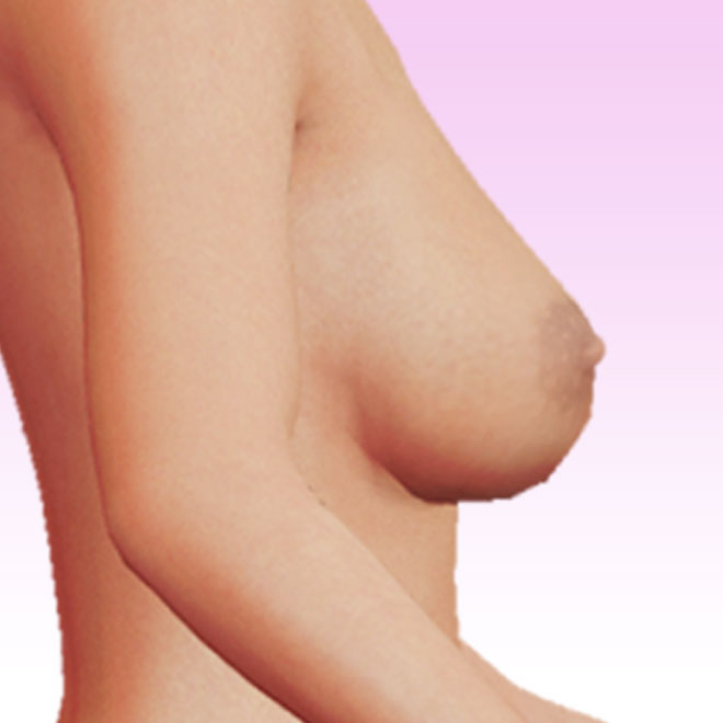 breast right lateral