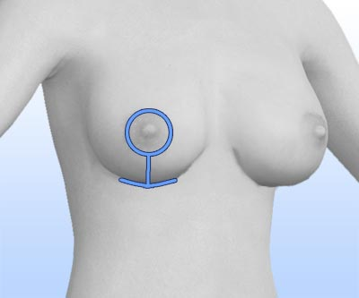 scars breast reduction - II