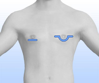 scars gynecomastia reduction - I