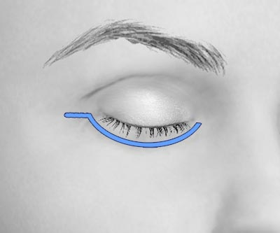 scars lower eye bags blepharoplasty - II