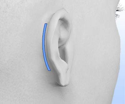 scars pinning otoplasty