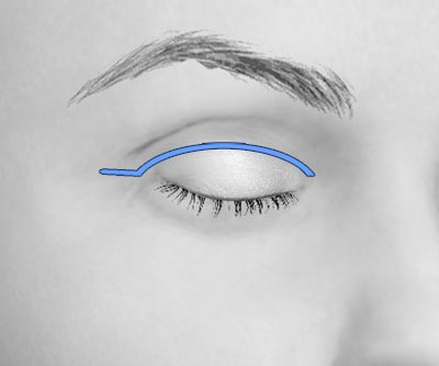 scars upper eye lift blepharoplasty - II